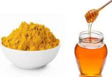 Trị mụn từ tinh bột nghệ và mật ong